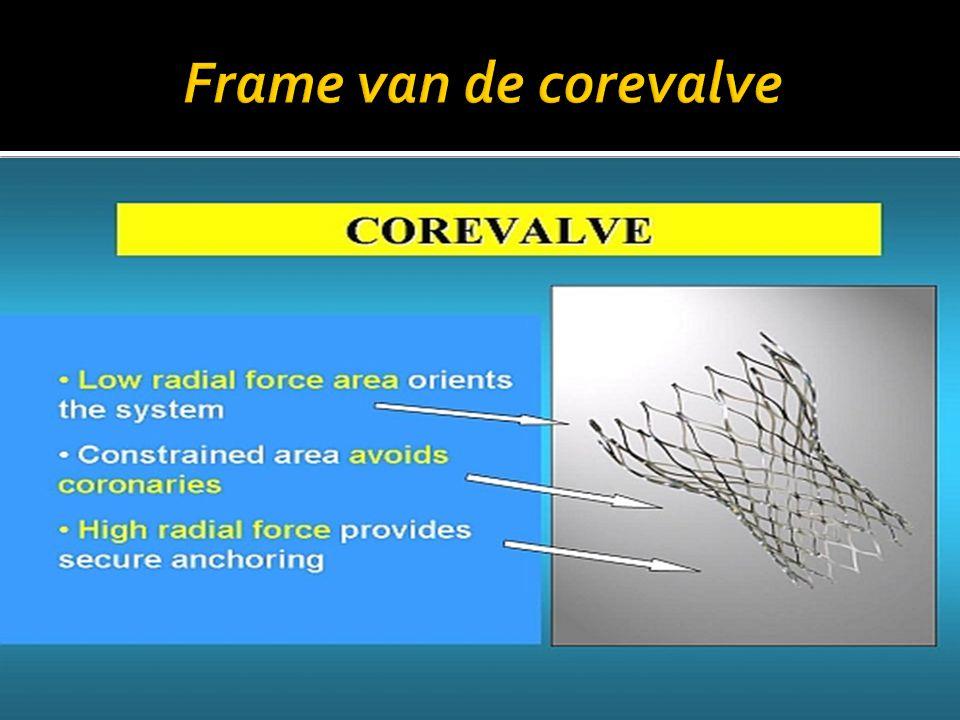 Frame van de corevalve