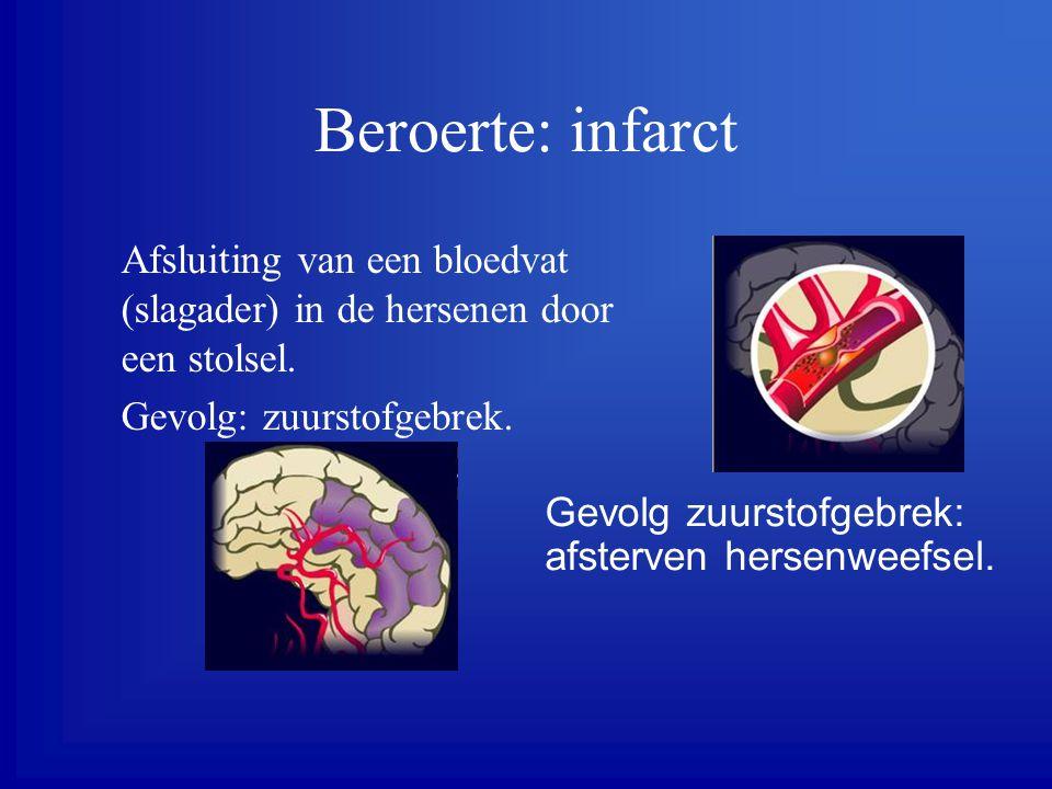 Beroerte: infarct Afsluiting van een bloedvat (slagader) in de hersenen door een stolsel. Gevolg: zuurstofgebrek.