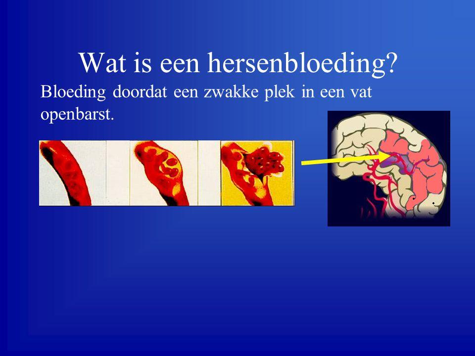 Wat is een hersenbloeding