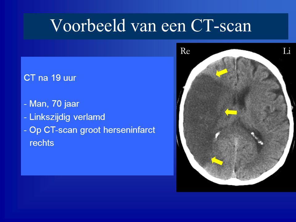 Voorbeeld van een CT-scan