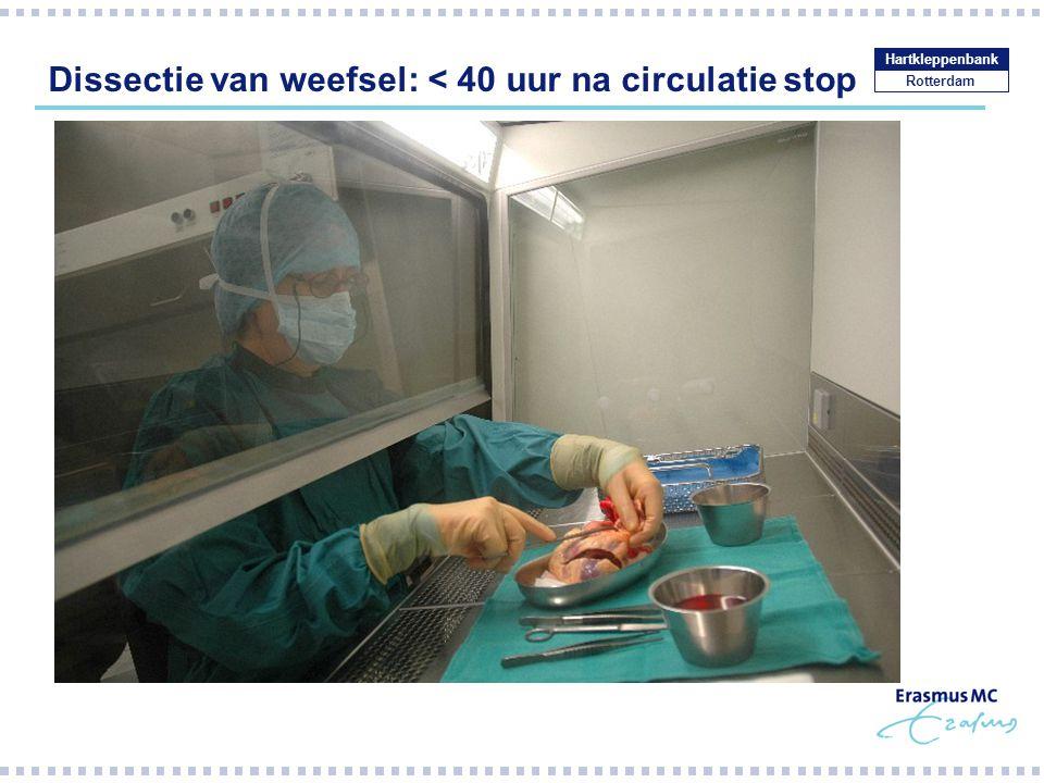 Dissectie van weefsel: < 40 uur na circulatie stop