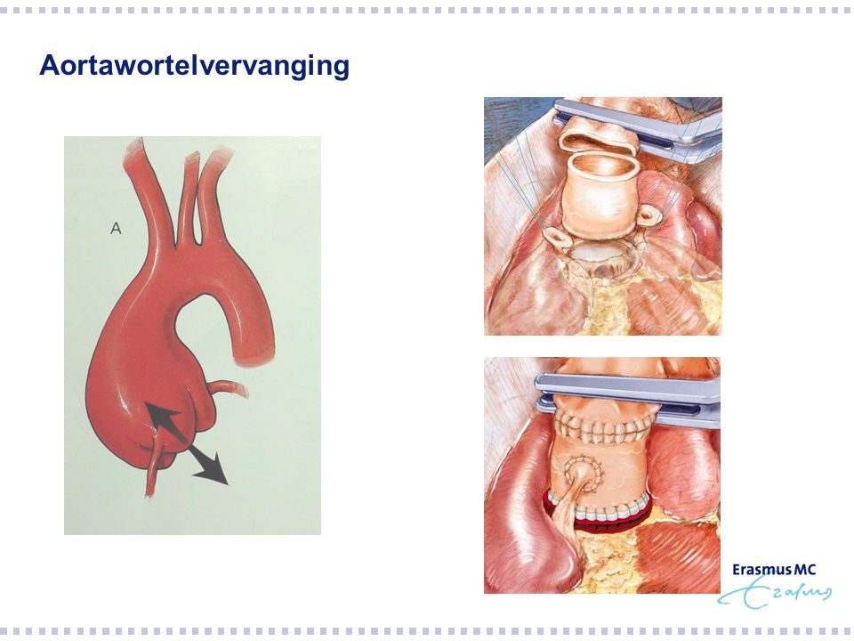 Aortawortelvervanging