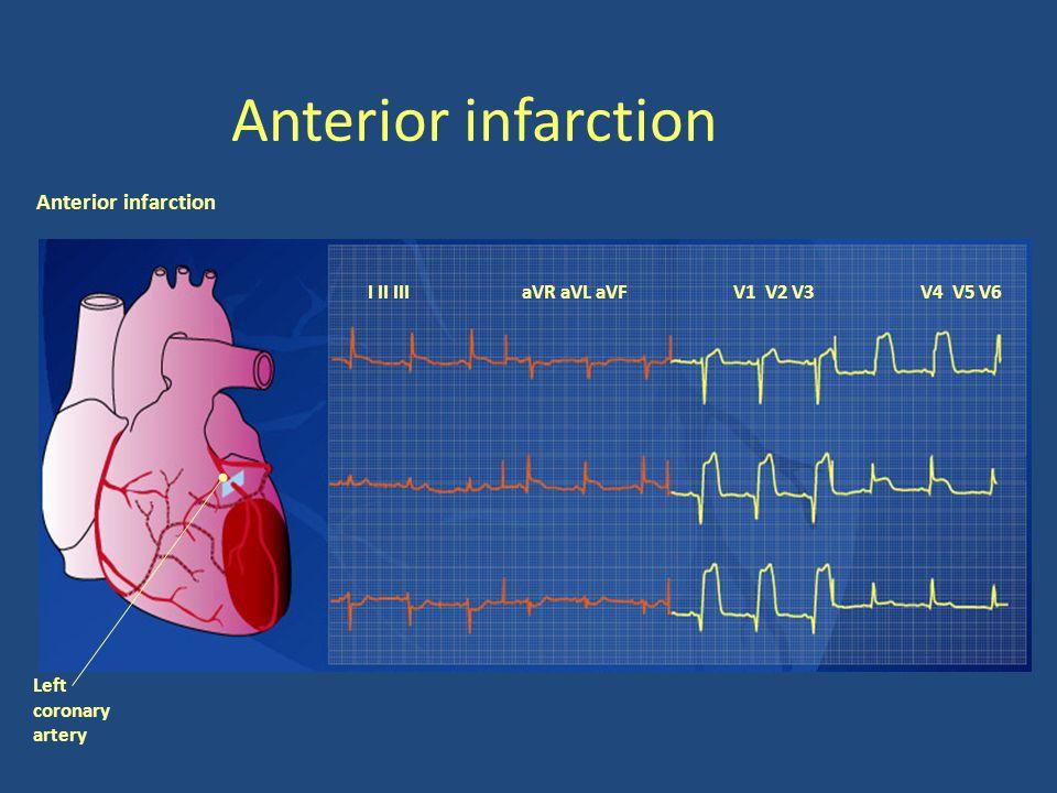 Anterior infarction Anterior infarction I II III aVR aVL aVF V1 V2 V3