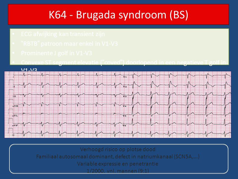 K64 - Brugada syndroom (BS)