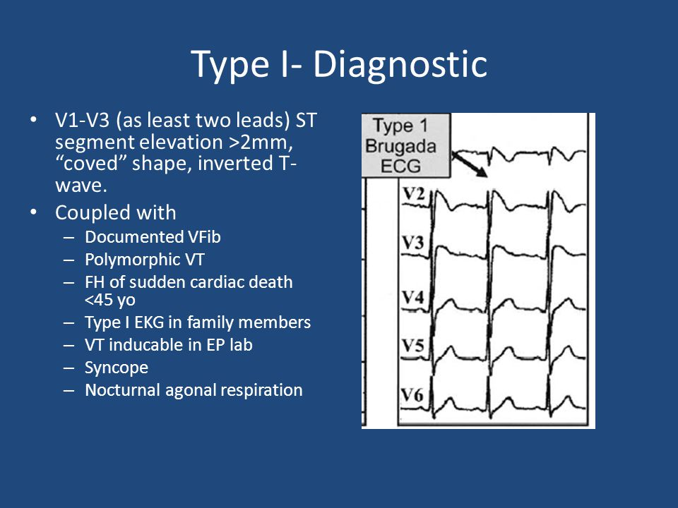 Type I- Diagnostic V1-V3 (as least two leads) ST segment elevation >2mm, coved shape, inverted T-wave.