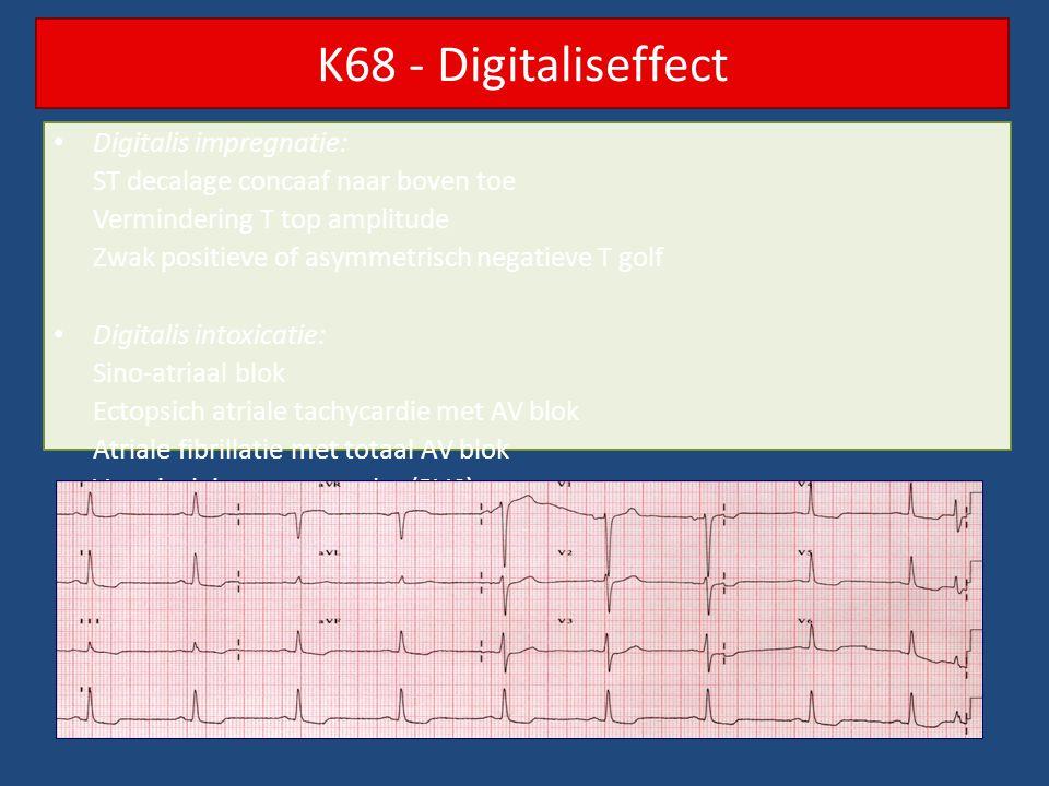 K68 - Digitaliseffect Digitalis impregnatie: