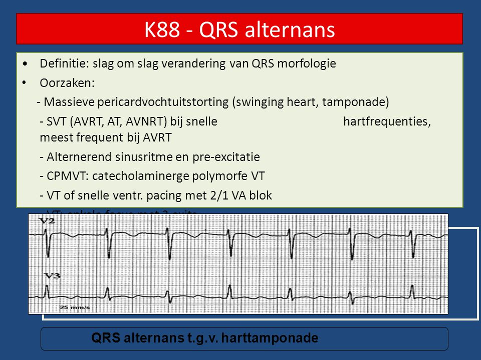 K88 - QRS alternans Definitie: slag om slag verandering van QRS morfologie. Oorzaken: