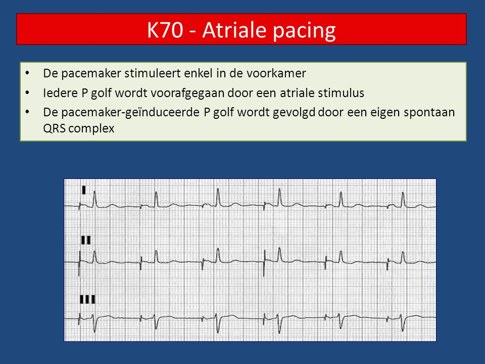 K70 - Atriale pacing De pacemaker stimuleert enkel in de voorkamer
