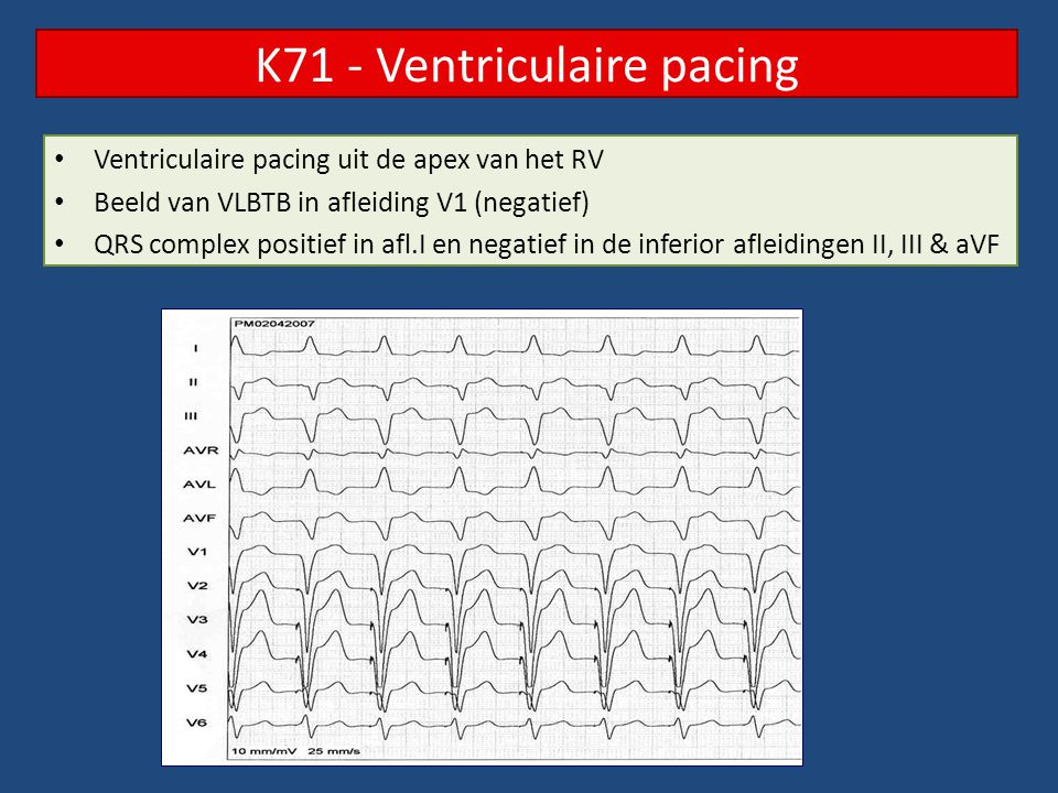 K71 - Ventriculaire pacing
