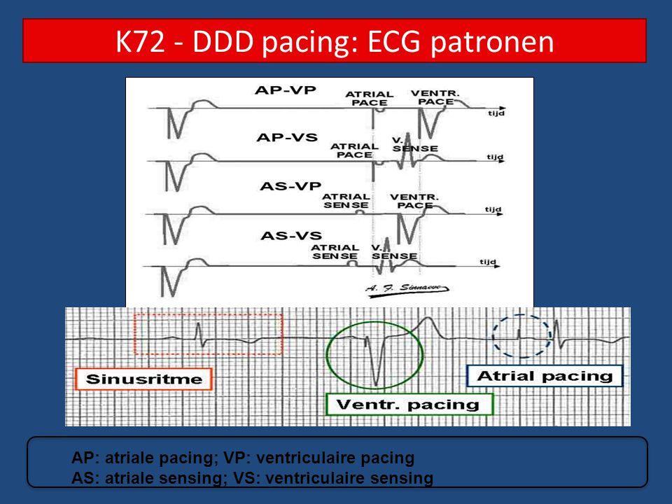 K72 - DDD pacing: ECG patronen
