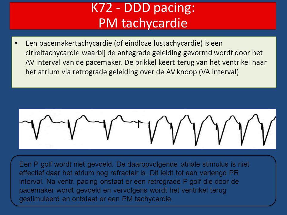 K72 - DDD pacing: PM tachycardie
