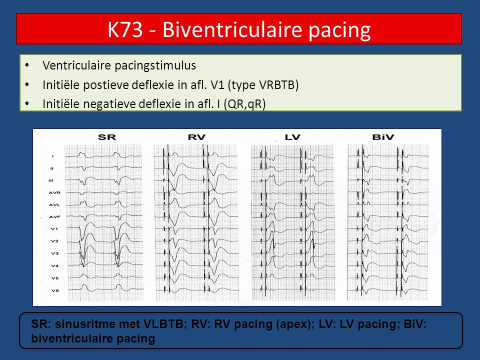 K73 - Biventriculaire pacing