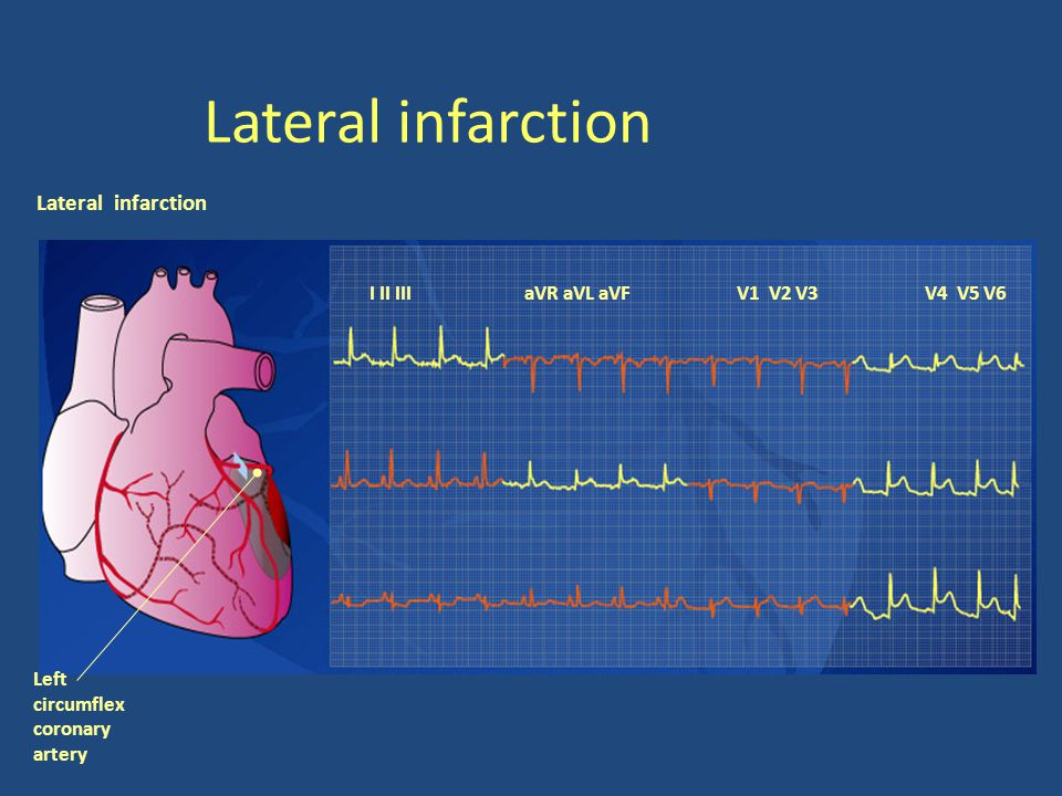 Lateral infarction Lateral infarction I II III aVR aVL aVF V1 V2 V3