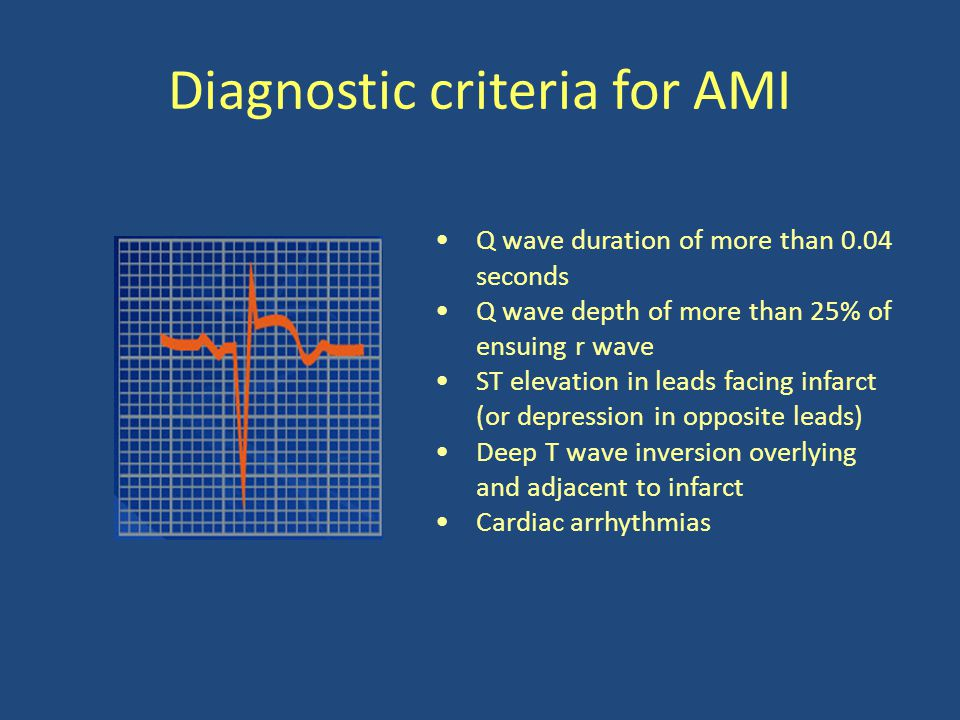 Diagnostic criteria for AMI