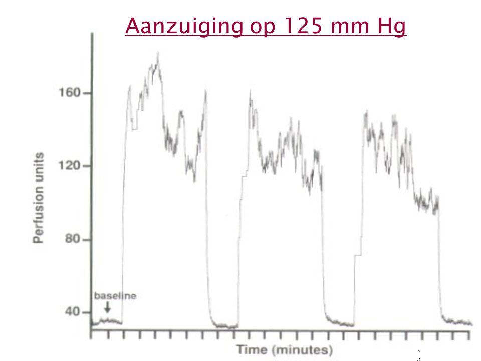 Aanzuiging op 125 mm Hg