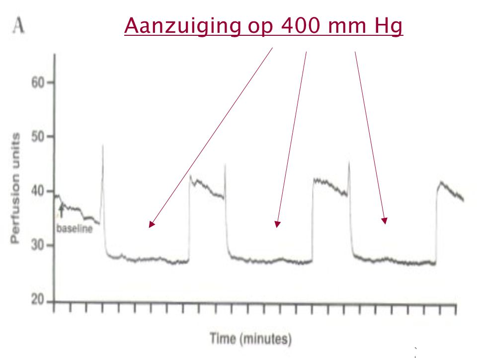 Aanzuiging op 400 mm Hg