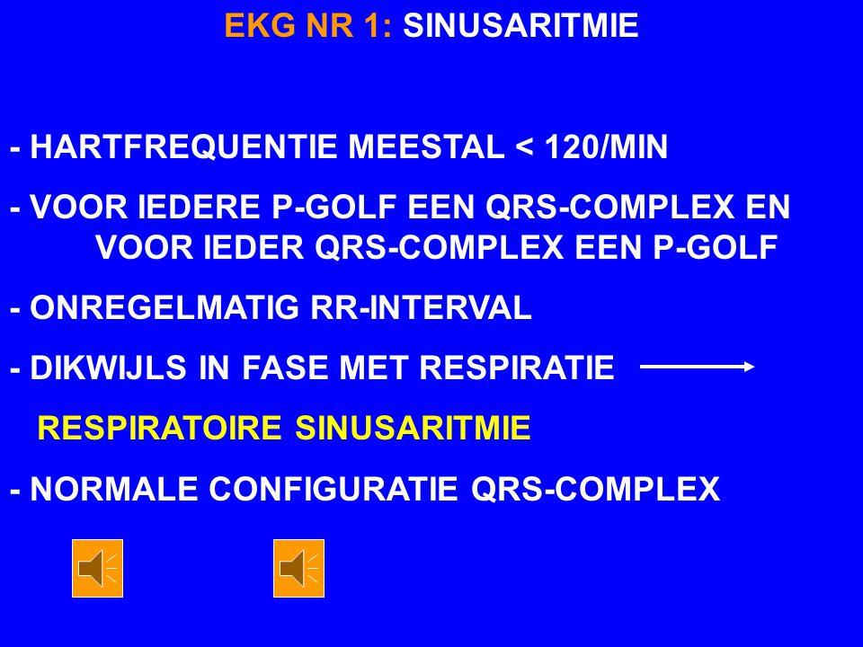 EKG NR 1: SINUSARITMIE - HARTFREQUENTIE MEESTAL < 120/MIN. - VOOR IEDERE P-GOLF EEN QRS-COMPLEX EN VOOR IEDER QRS-COMPLEX EEN P-GOLF.