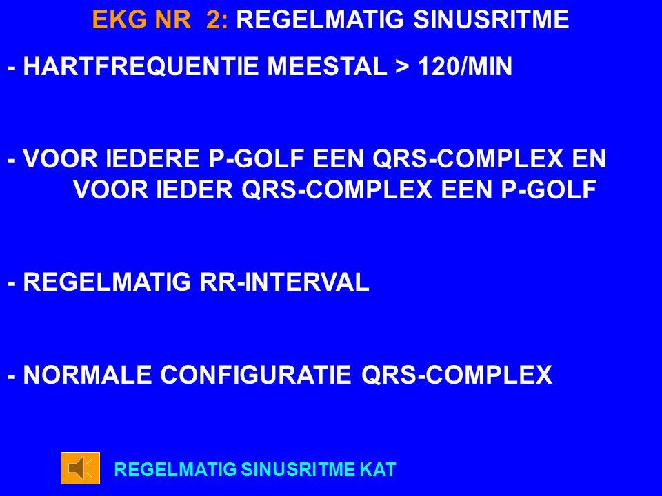 EKG NR 2: REGELMATIG SINUSRITME
