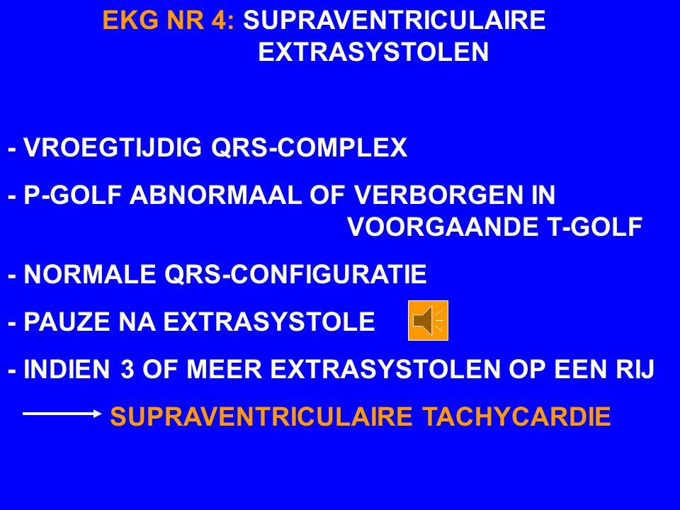 EKG NR 4: SUPRAVENTRICULAIRE EXTRASYSTOLEN