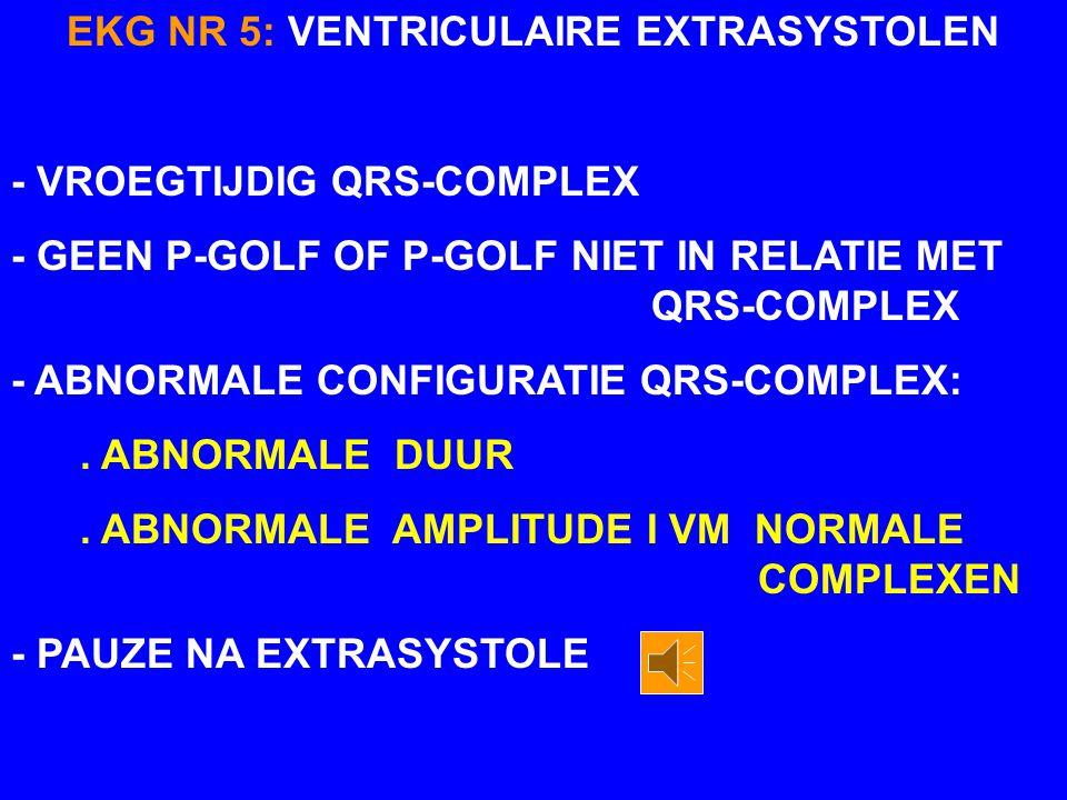 EKG NR 5: VENTRICULAIRE EXTRASYSTOLEN