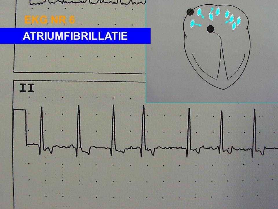 EKG NR 6 ATRIUMFIBRILLATIE