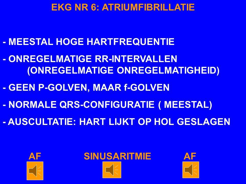 EKG NR 6: ATRIUMFIBRILLATIE