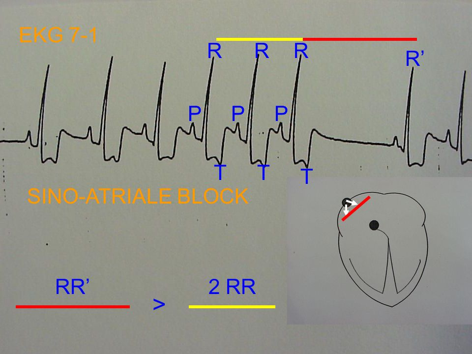 EKG 7-1 R R R R' P P P T T T SINO-ATRIALE BLOCK RR' 2 RR >