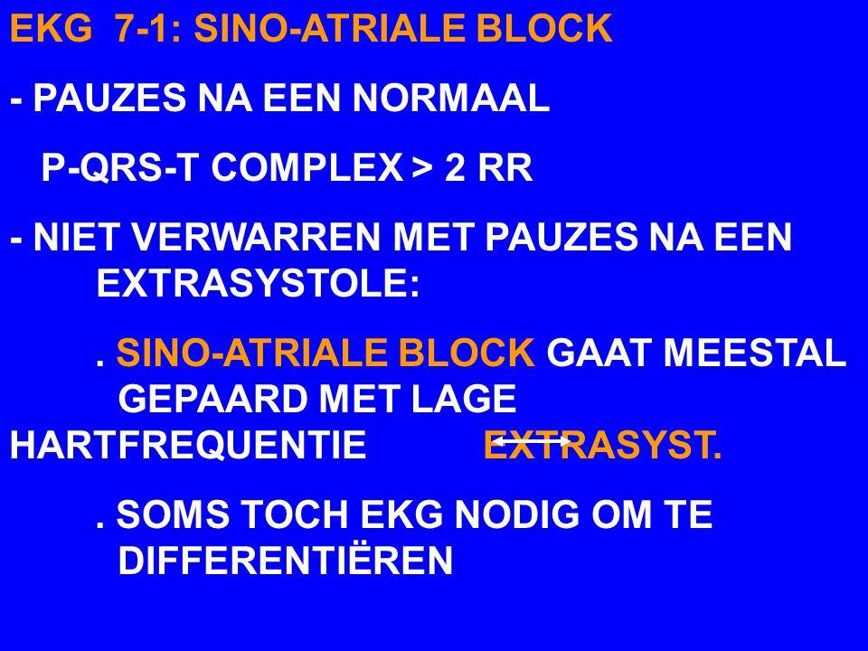 EKG 7-1: SINO-ATRIALE BLOCK