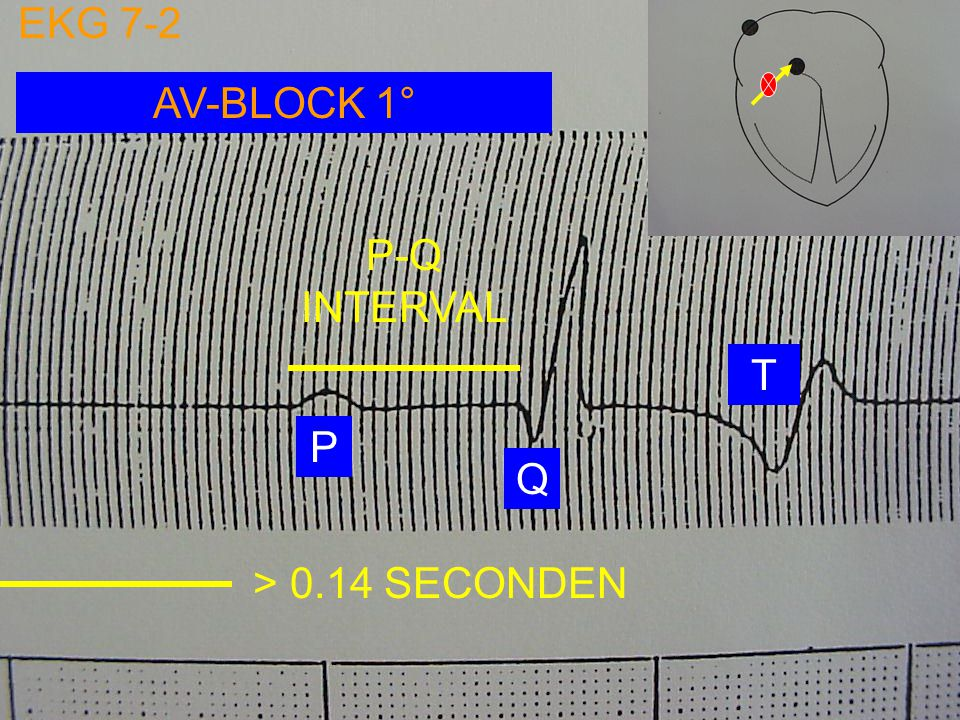 EKG 7-2 AV-BLOCK 1° P-Q INTERVAL T P Q > 0.14 SECONDEN