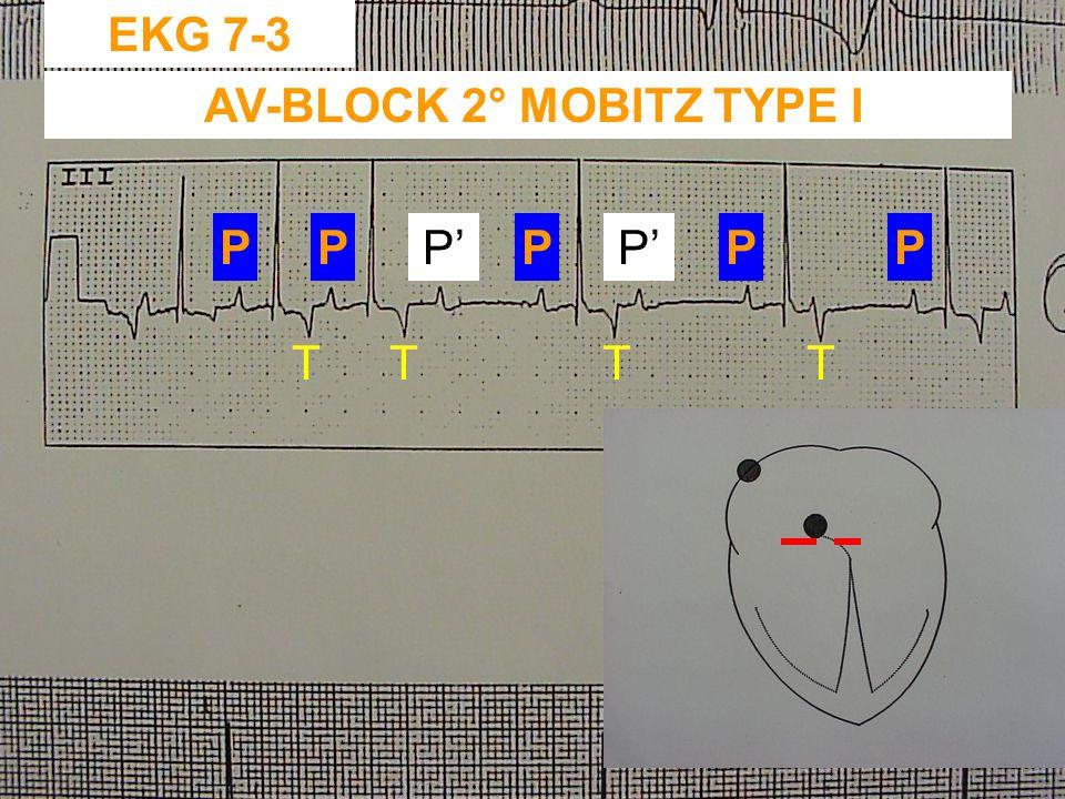 AV-BLOCK 2° MOBITZ TYPE I
