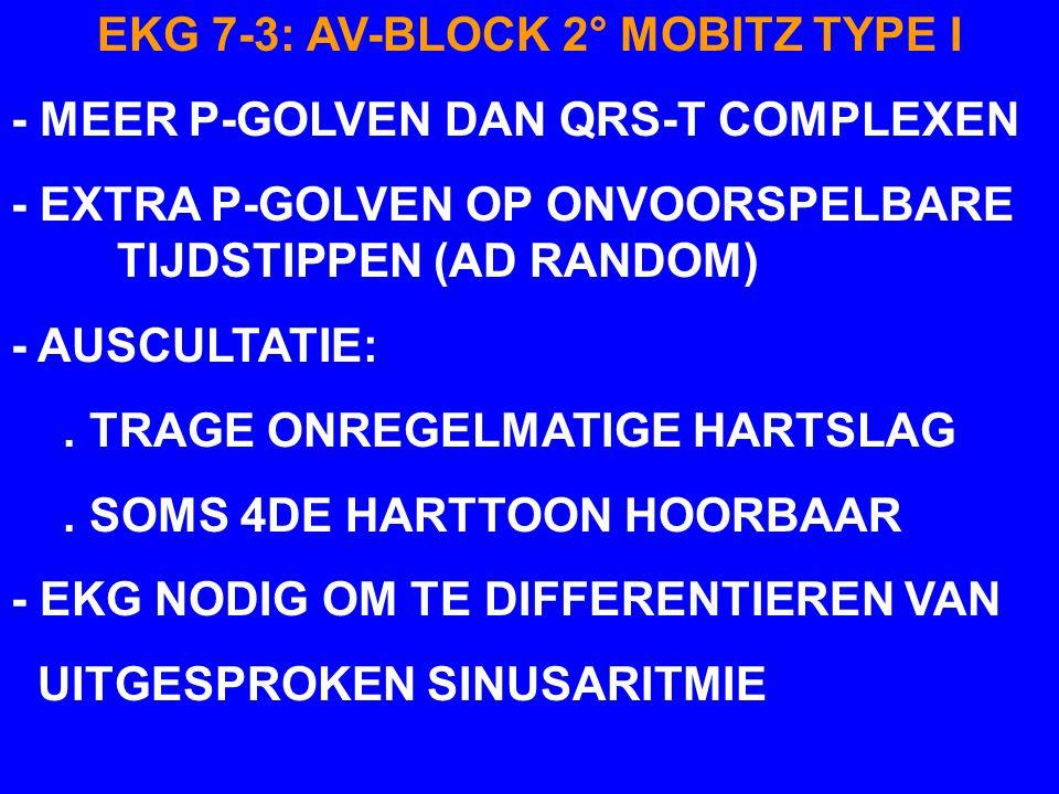 EKG 7-3: AV-BLOCK 2° MOBITZ TYPE I