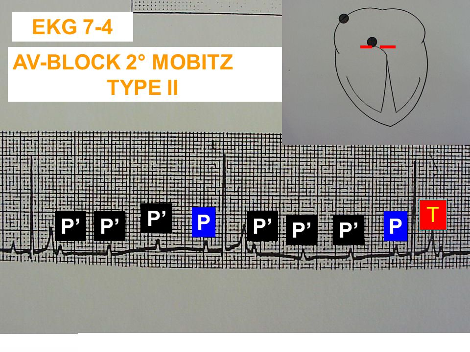 EKG 7-4 AV-BLOCK 2° MOBITZ TYPE II T P' P P' P' P' P P' P'