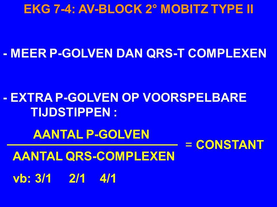 EKG 7-4: AV-BLOCK 2° MOBITZ TYPE II