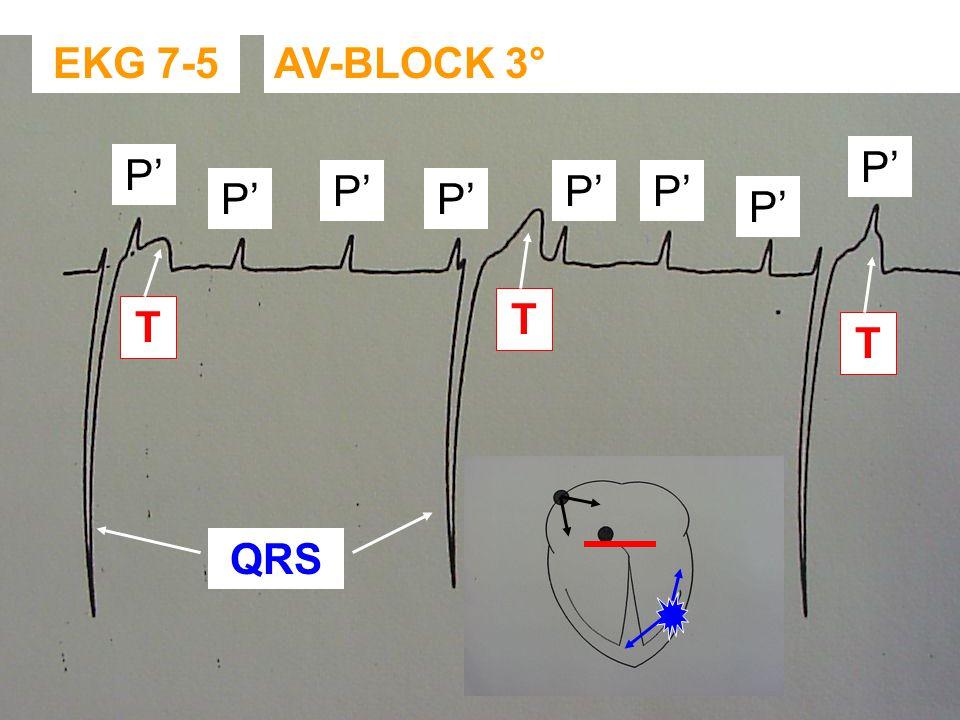 EKG 7-5 AV-BLOCK 3° P' P' P' P' P' P' P' P' T T T QRS