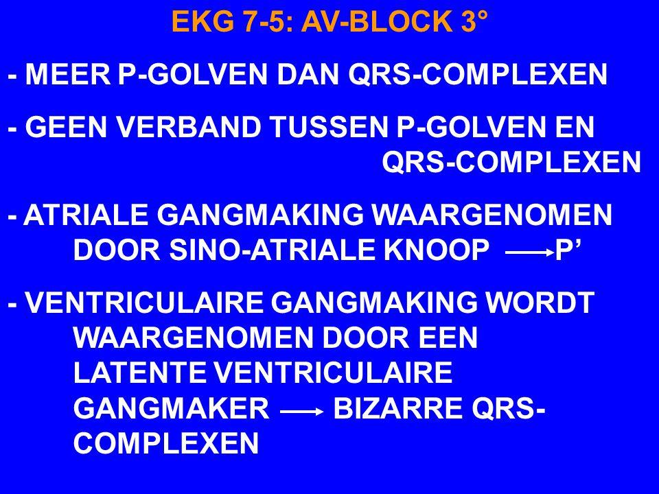 EKG 7-5: AV-BLOCK 3° - MEER P-GOLVEN DAN QRS-COMPLEXEN. - GEEN VERBAND TUSSEN P-GOLVEN EN QRS-COMPLEXEN.