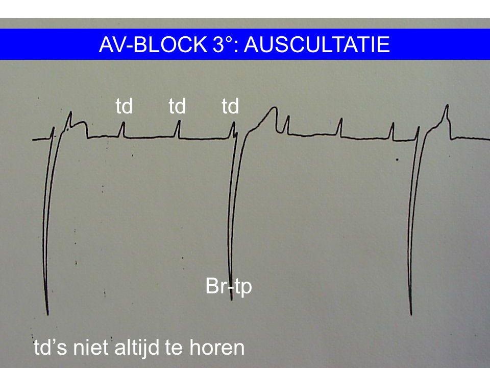 AV-BLOCK 3°: AUSCULTATIE