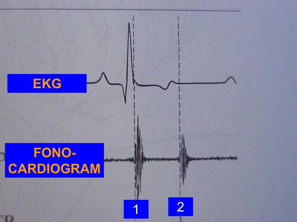 EKG FONO-CARDIOGRAM 2 1