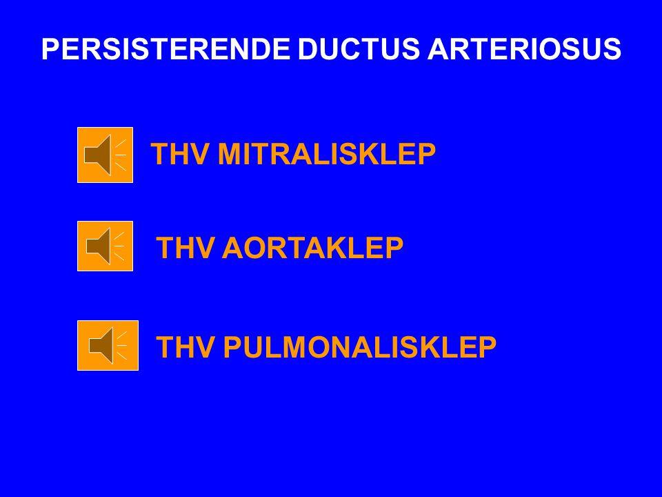 PERSISTERENDE DUCTUS ARTERIOSUS