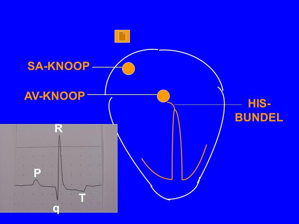 SA-KNOOP AV-KNOOP HIS-BUNDEL R P T q