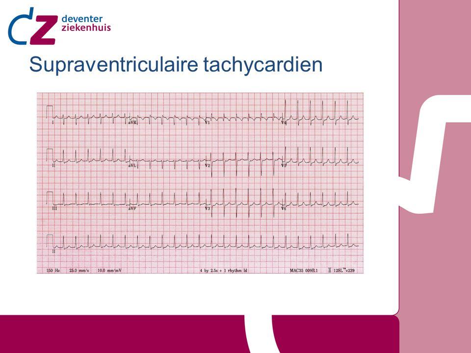 Supraventriculaire tachycardien