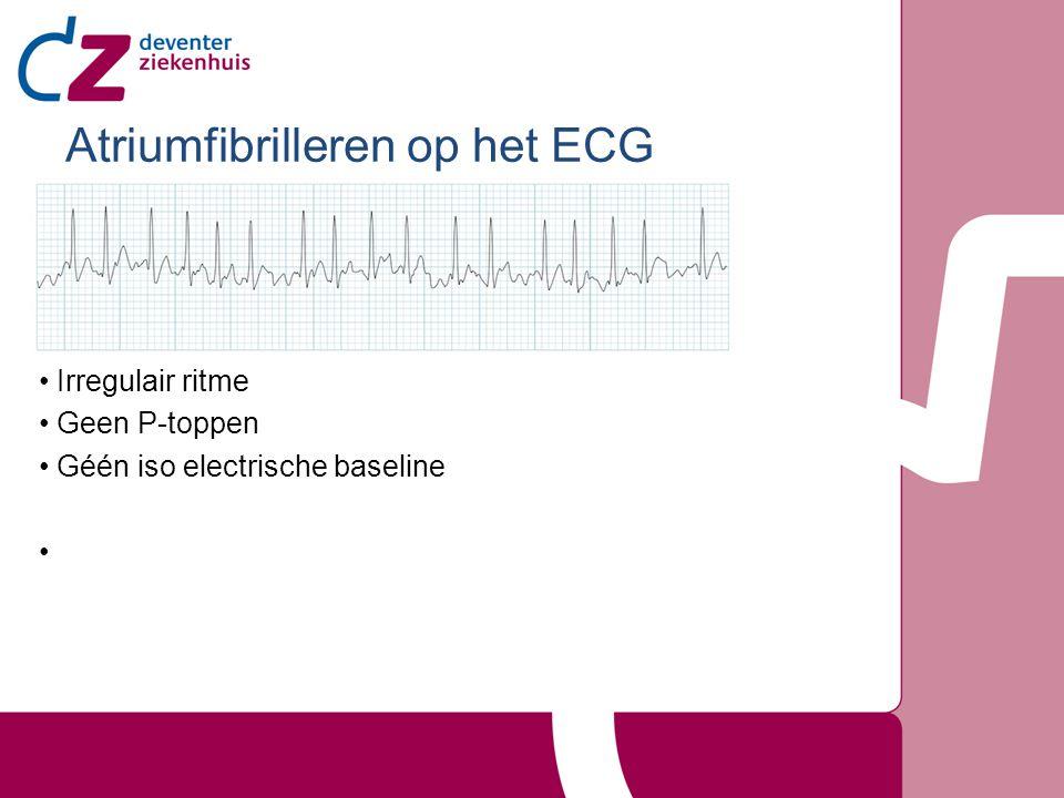 Atriumfibrilleren op het ECG