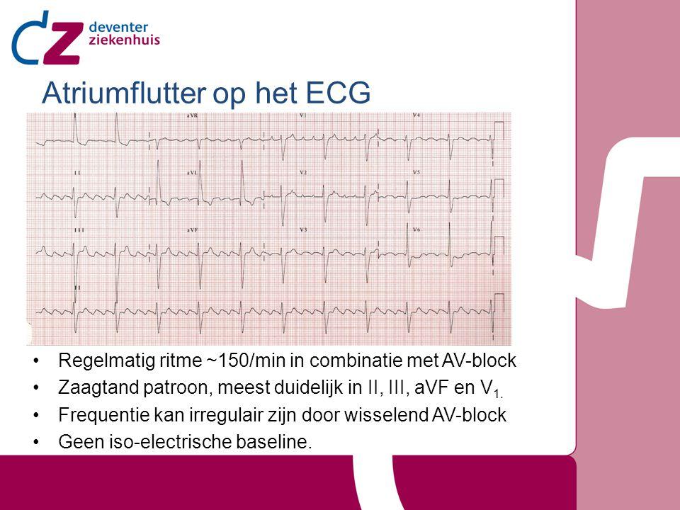 Atriumflutter op het ECG