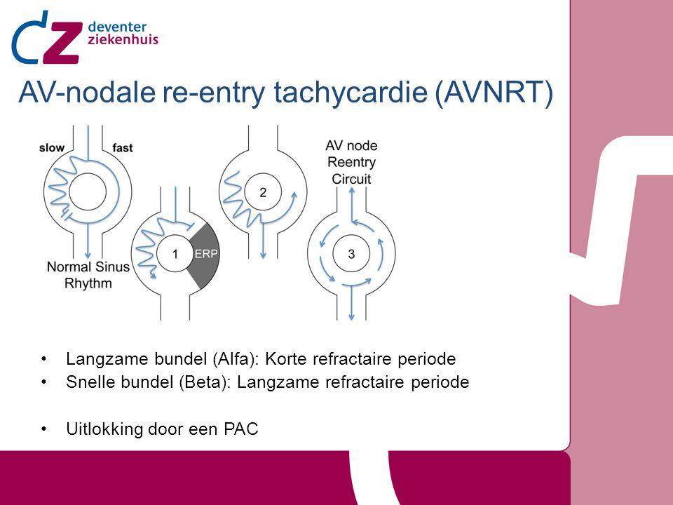 AV-nodale re-entry tachycardie (AVNRT)