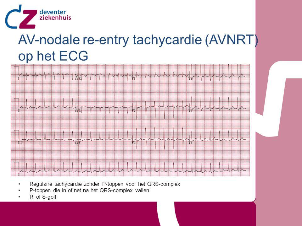 AV-nodale re-entry tachycardie (AVNRT) op het ECG