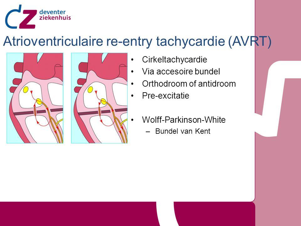 Atrioventriculaire re-entry tachycardie (AVRT)