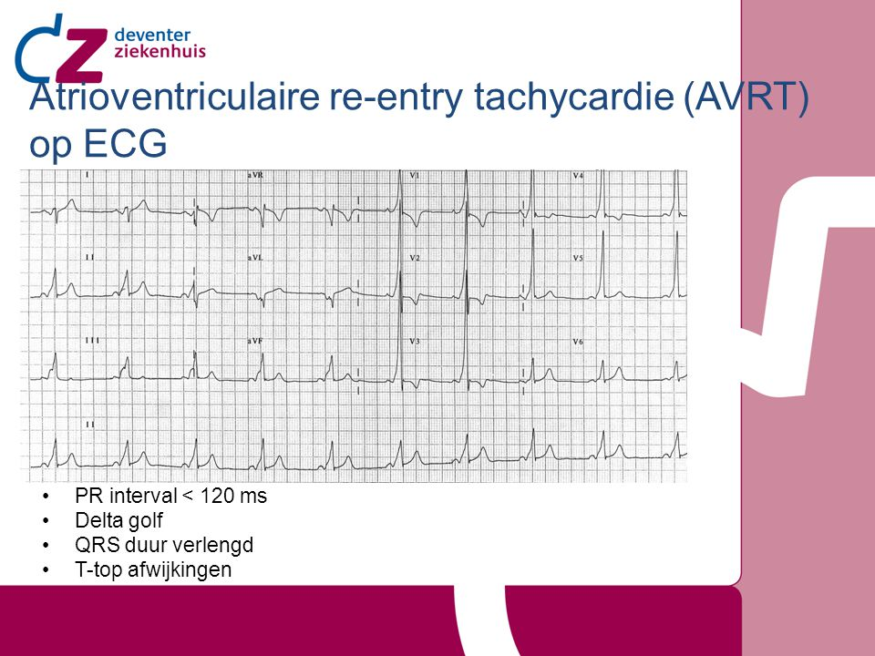 Atrioventriculaire re-entry tachycardie (AVRT) op ECG