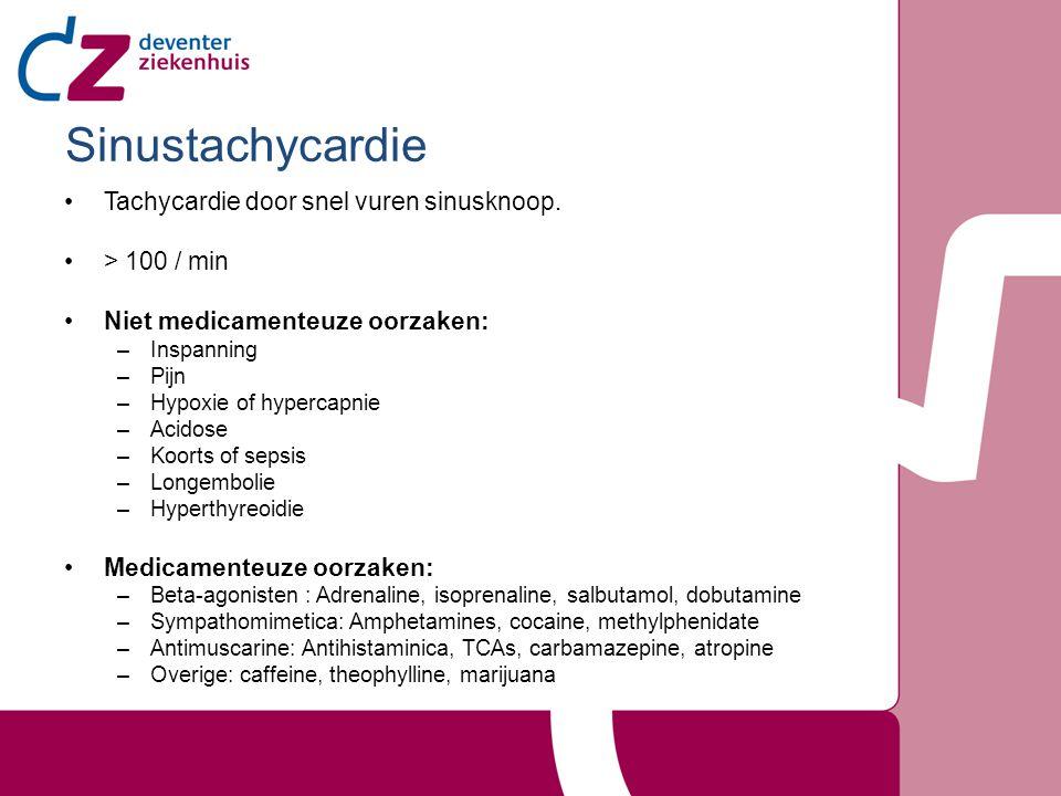 Sinustachycardie Tachycardie door snel vuren sinusknoop.