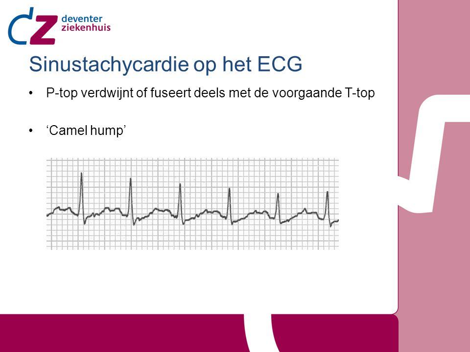 Sinustachycardie op het ECG