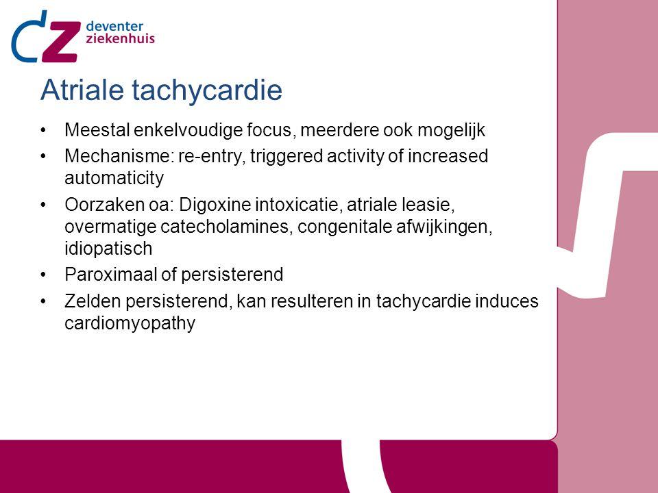 Atriale tachycardie Meestal enkelvoudige focus, meerdere ook mogelijk