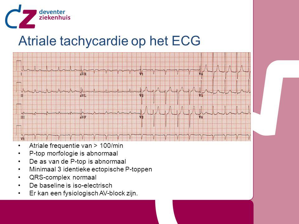 Atriale tachycardie op het ECG
